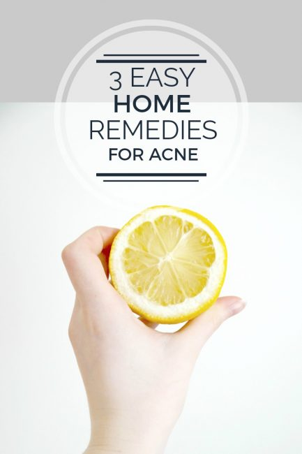 3 Easy Home Remedies for Acne & Scars